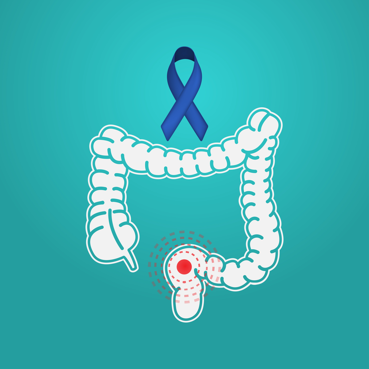 age for colon cancer screening