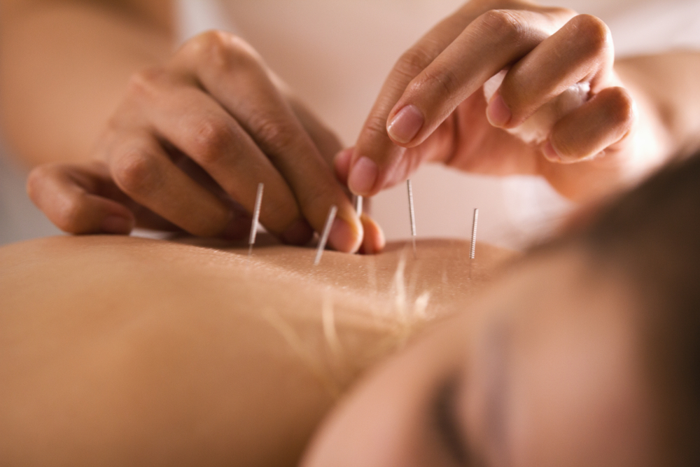 Acupuncture is often used as an alternative to pain-killing medication.